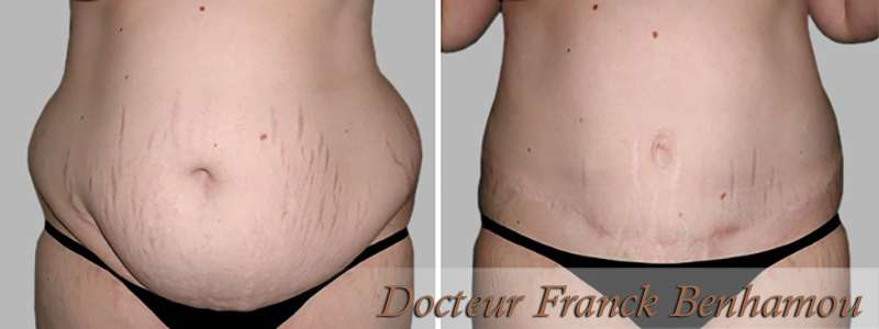 Photo avant après chirurgie abdominoplastie