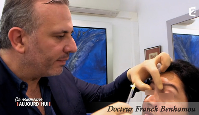 Injection toxine botulique au visage
